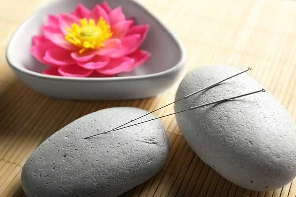 accupuncture needles sitting on rounded stones